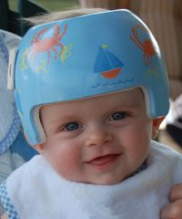 Joe was fitted for his baby helmet by CKD